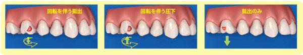 大臼歯の最適アタッチメント
