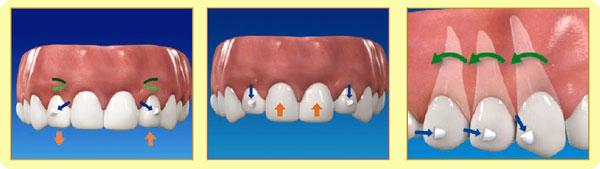 上顎切歯のコントロール性の向上