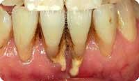 歯石で歯肉が圧迫され下がる