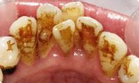 歯の裏側の着色