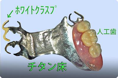 生体親和性のあるチタン床義歯