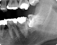 親知らず(虫歯)のレントゲン像