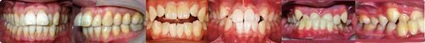 悪い歯並び(不正咬合)