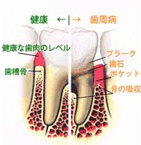 奥歯の歯周病