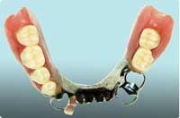 チタン床金属義歯(部分入れ歯)