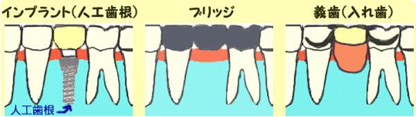 インプラント、ブリッジ、義歯による治療法の違い